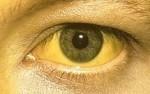 Sárga sclera - de ennyire azért ritkán